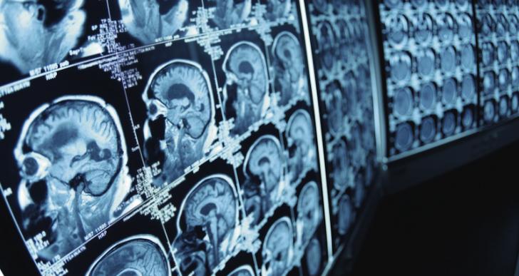 Un paciente crea tecnología para operar el cerebro en 3D