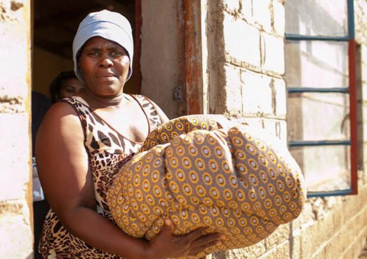 Esta bolsa facilita la vida en zonas pobres