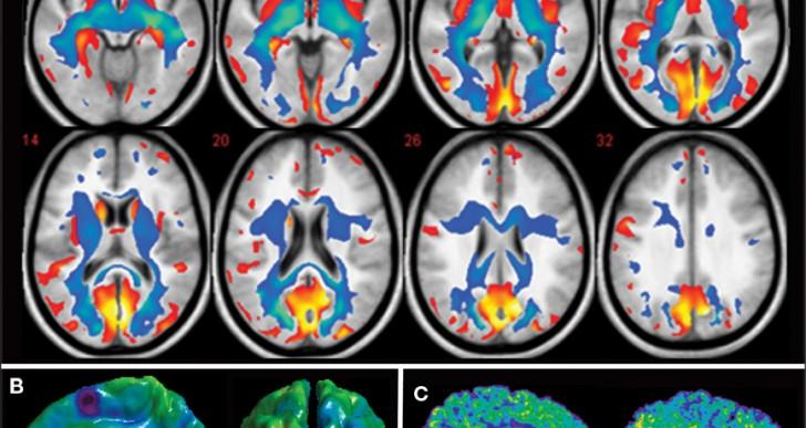 Restauran la memoria de ratones con alzheimer usando ultrasonido