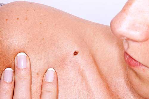 Exámenes gratis de detección de cáncer de piel