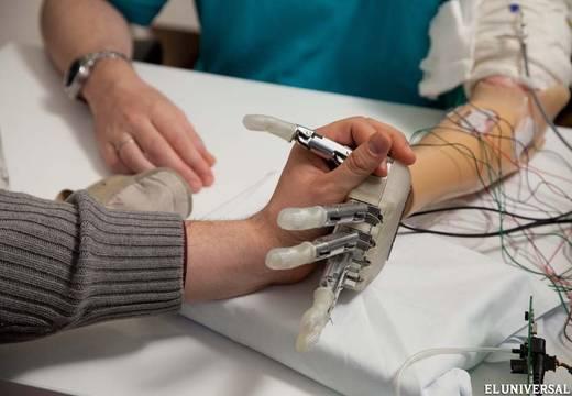 Desarrollan mano biónica que transmite sensaciones