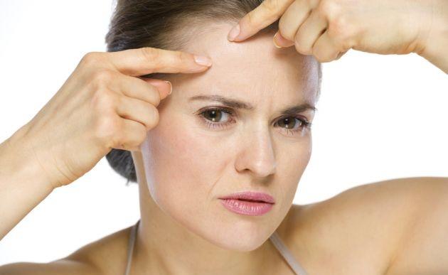 Si tiendes a padecer acné aquí hay 9 cosas que debes saber