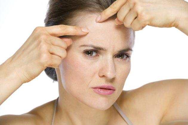 Si aún sufres de acné, esto podría ser lo que lo esta causando