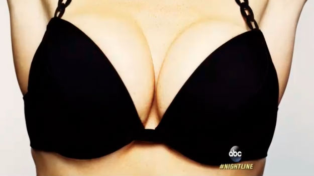 Una inyección hará posible aumentar los senos temporalmente