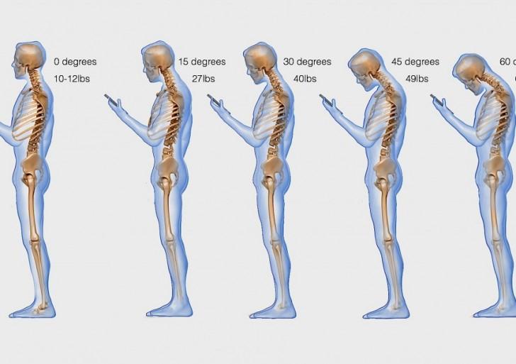 Esto es lo que tu celular le esta haciendo a tu columna