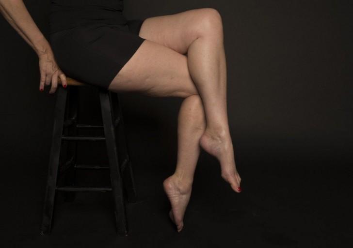 Inspiradoras fotos desmitifican la imagen de los muslos femeninos