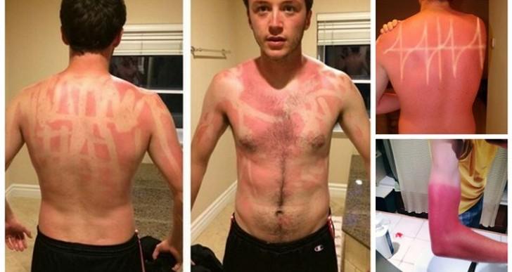 16 lamentables y chistosas quemaduras de sol