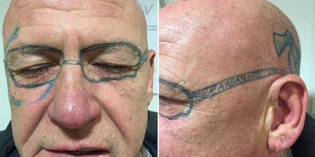 Este hombre despertó un día con unos lentes tatuados en la cara