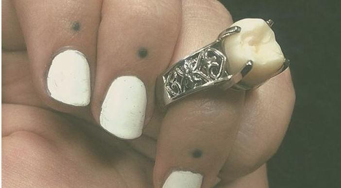 Esta chica recibió la muela de juicio de su prometido como anillo de compromiso