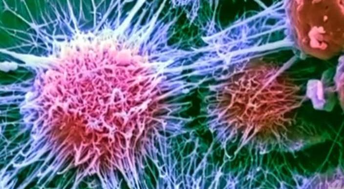 Estos científicos consiguieron eliminar 90% de células cancerígenas con algas