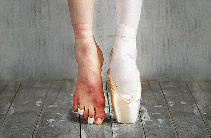 El costo de los aplausos: fotografías que retratan la realidad del ballet