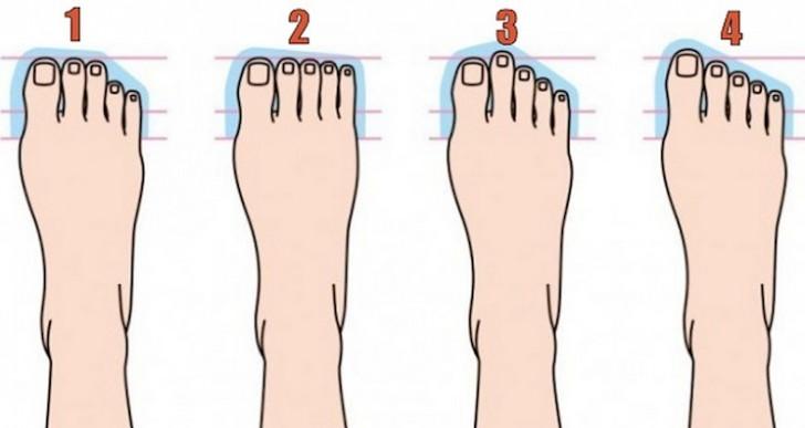 5 distintos tipos de pies y lo que significan