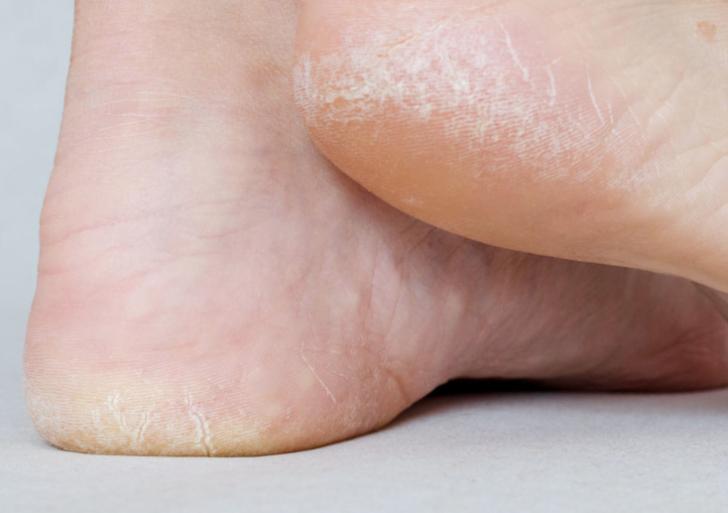 Cómo cuidar tus pies resecos y quebradizos
