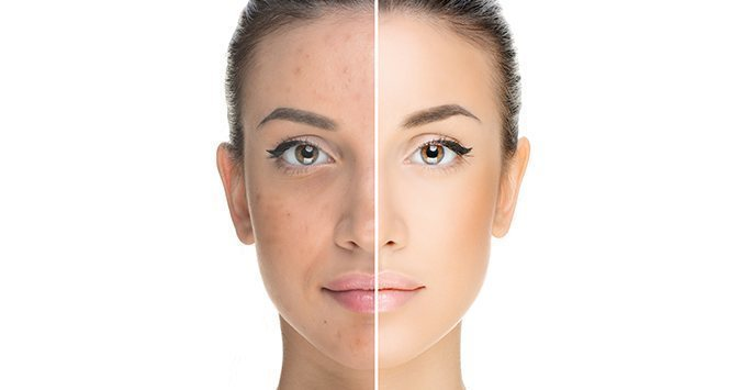 No basta con aplicar un producto en la piel para tratar el acné