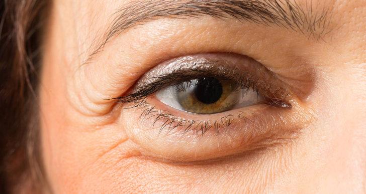 7 razones comunes para que se te hinchen los ojos