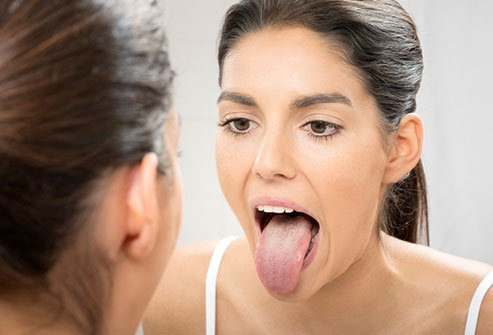 ¿Cómo puedes tratar la sequedad en la boca?