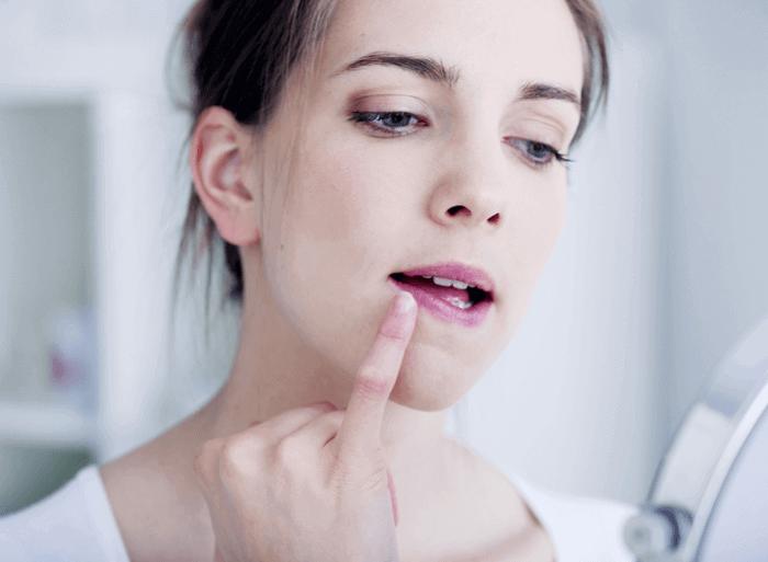 Cómo curar y evitar los labios resecos en los siguientes meses