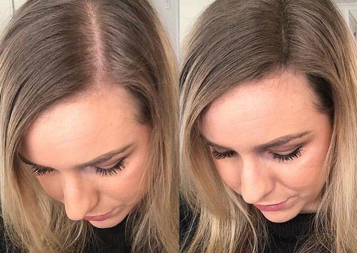 ¿Cuál es la diferencia entre pelo fino y el pelo despoblado?