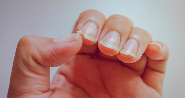 Cómo remediar y prevenir las uñas rotas