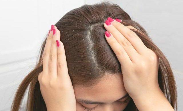 Cómo aliviar y prevenir esas quemadas en el cuero cabelludo